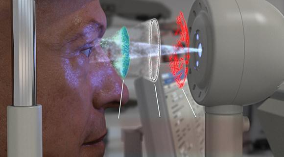 ベリオンで患者様の目の状態を解析している様子